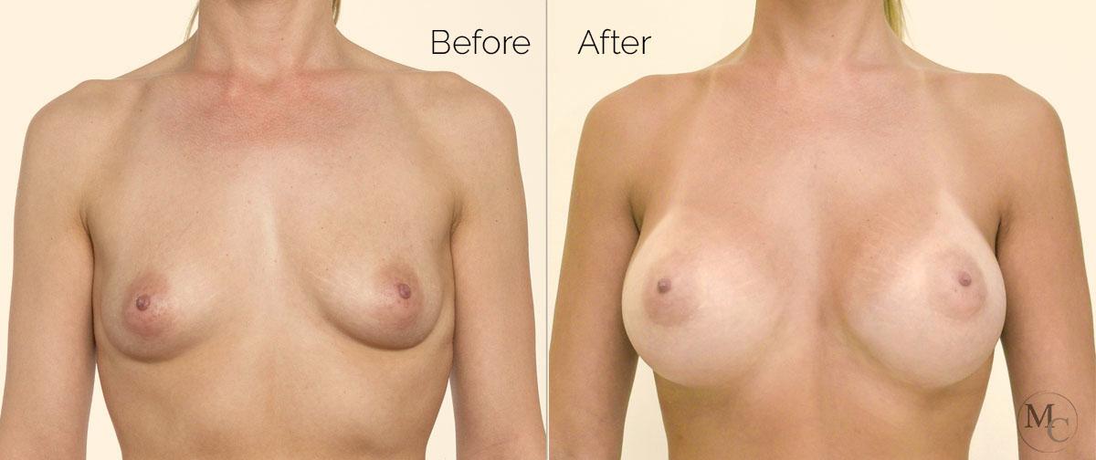 chirurgia-seno-mattiacolli-lugano