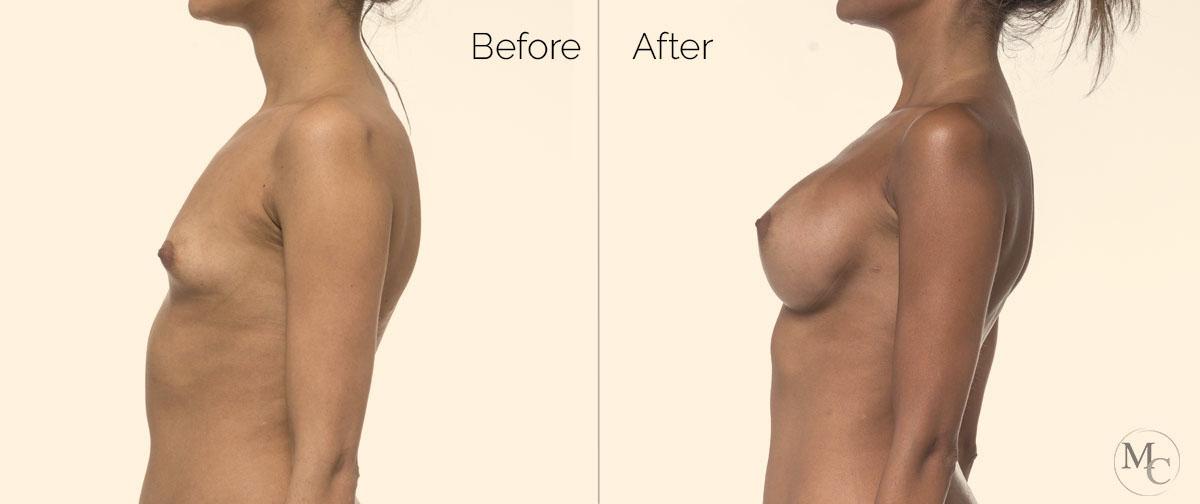 prepost-intervento-seno-mattiacolli-lugano