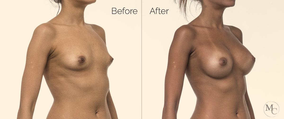 intervento-seno-prepost-mattiacolli-lugano