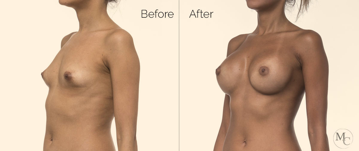 intervento-seno-mattiacolli-lugano
