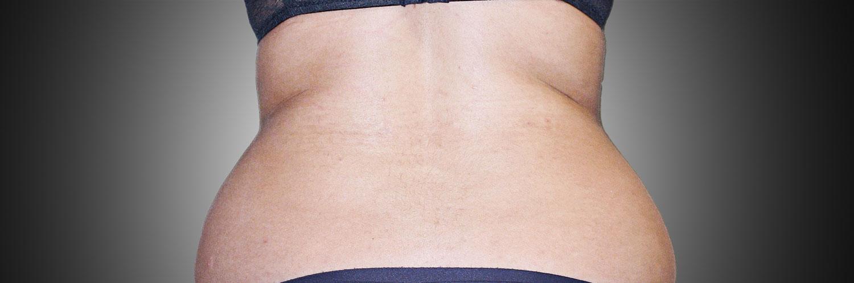 liposuzione pre operatorio-mattiacolli-lugano