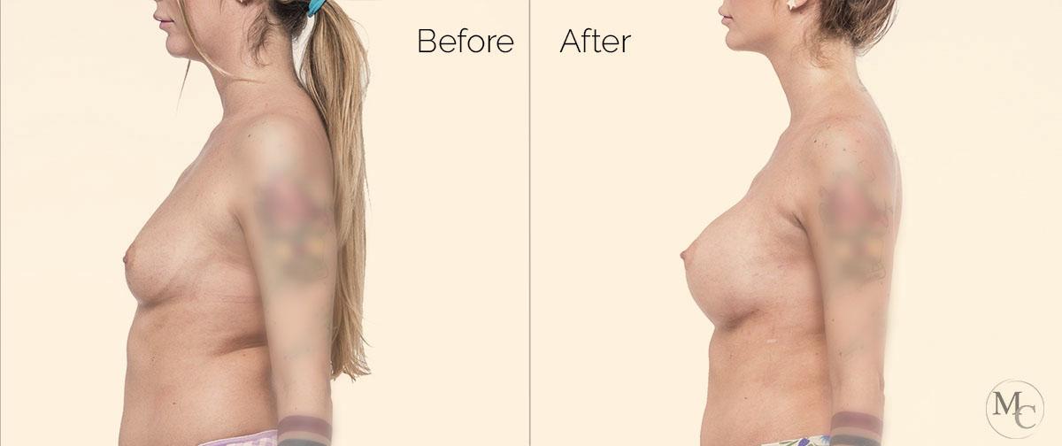chirurgia-plastica-seno-mattiacolli-lugano