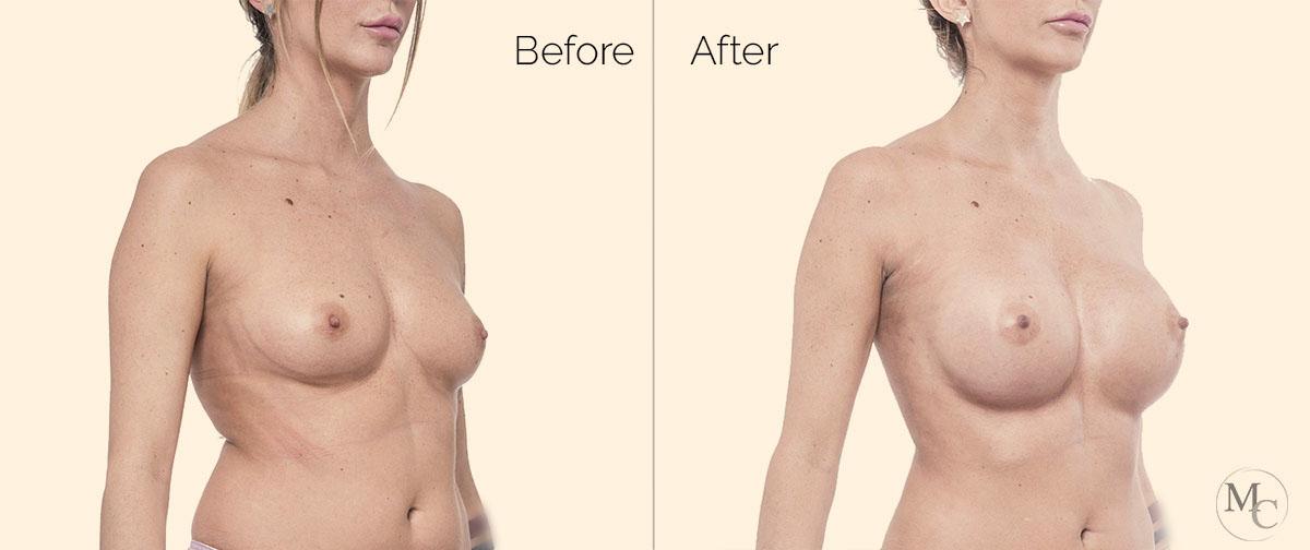 chirurgia-plastica-mattiacolli-lugano