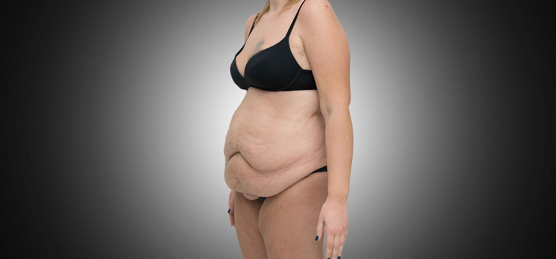 addominoplastica-pre-intervento